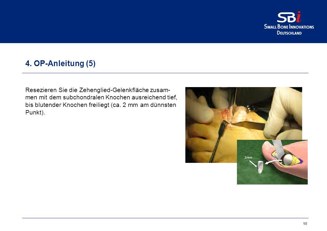 10 4. OP-Anleitung (5) Resezieren Sie die Zehenglied-Gelenkfläche zusam- men mit dem subchondralen Knochen ausreichend tief, bis blutender Knochen fre