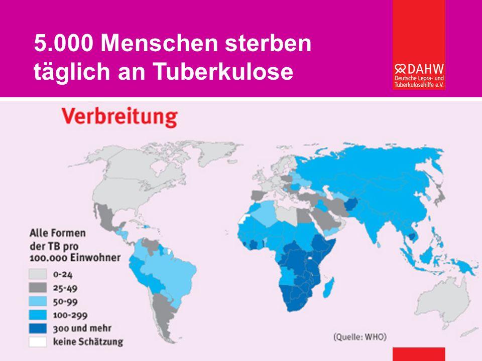 Welche Gesundheitssysteme können sich afrikanische Länder leisten? – Burkard Kömm 5.000 Menschen sterben täglich an Tuberkulose