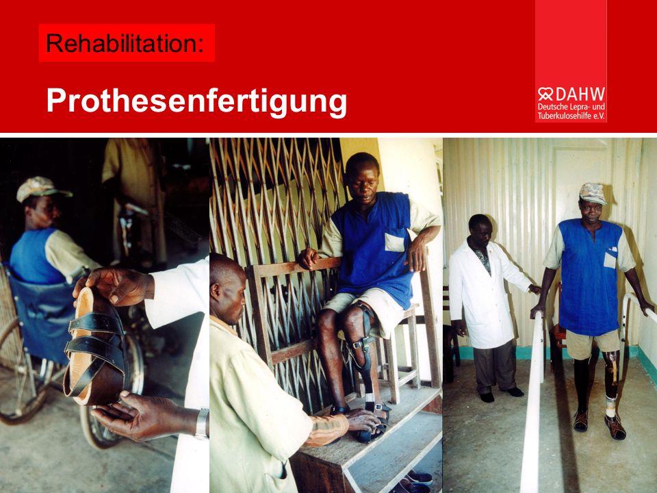 Welche Gesundheitssysteme können sich afrikanische Länder leisten? – Burkard Kömm Prothesenfertigung Rehabilitation: