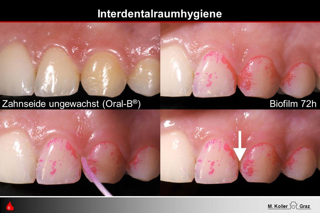 Interdentalraumhygiene B M. KollerGraz Zahnseide ungewachst (Oral-B ® )Biofilm 72h
