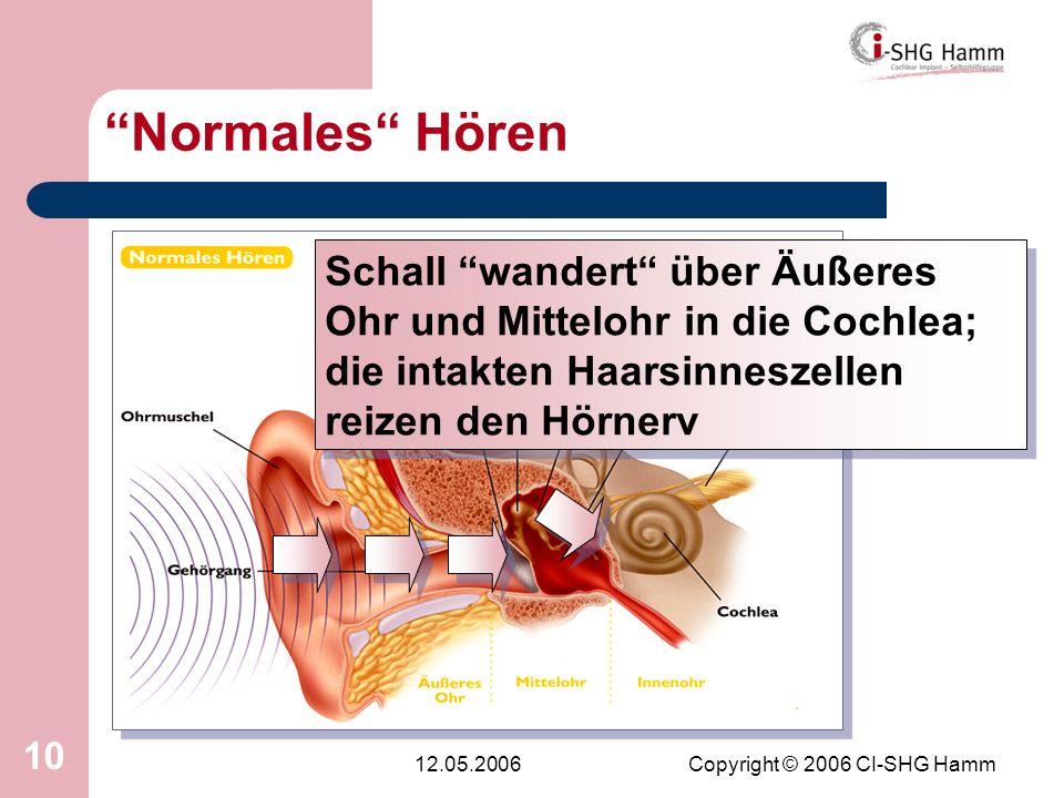 12.05.2006Copyright © 2006 CI-SHG Hamm 10 Normales Hören Schall wandert über Äußeres Ohr und Mittelohr in die Cochlea; die intakten Haarsinneszellen r