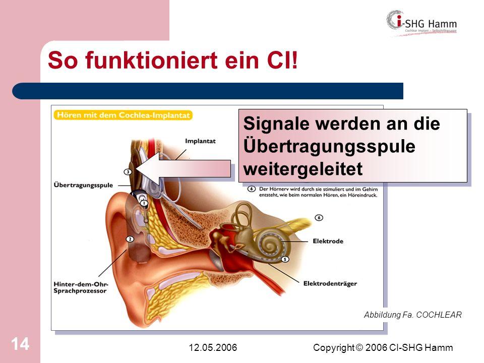 12.05.2006Copyright © 2006 CI-SHG Hamm 14 So funktioniert ein CI! Abbildung Fa. COCHLEAR Signale werden an die Übertragungsspule weitergeleitet