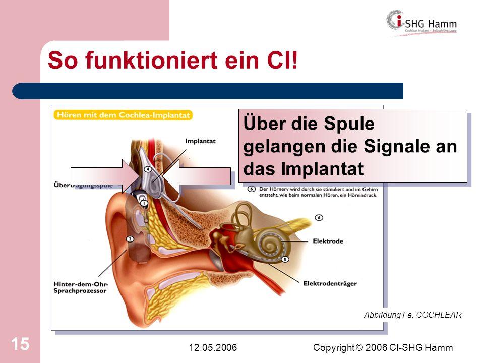 12.05.2006Copyright © 2006 CI-SHG Hamm 15 So funktioniert ein CI! Abbildung Fa. COCHLEAR Über die Spule gelangen die Signale an das Implantat