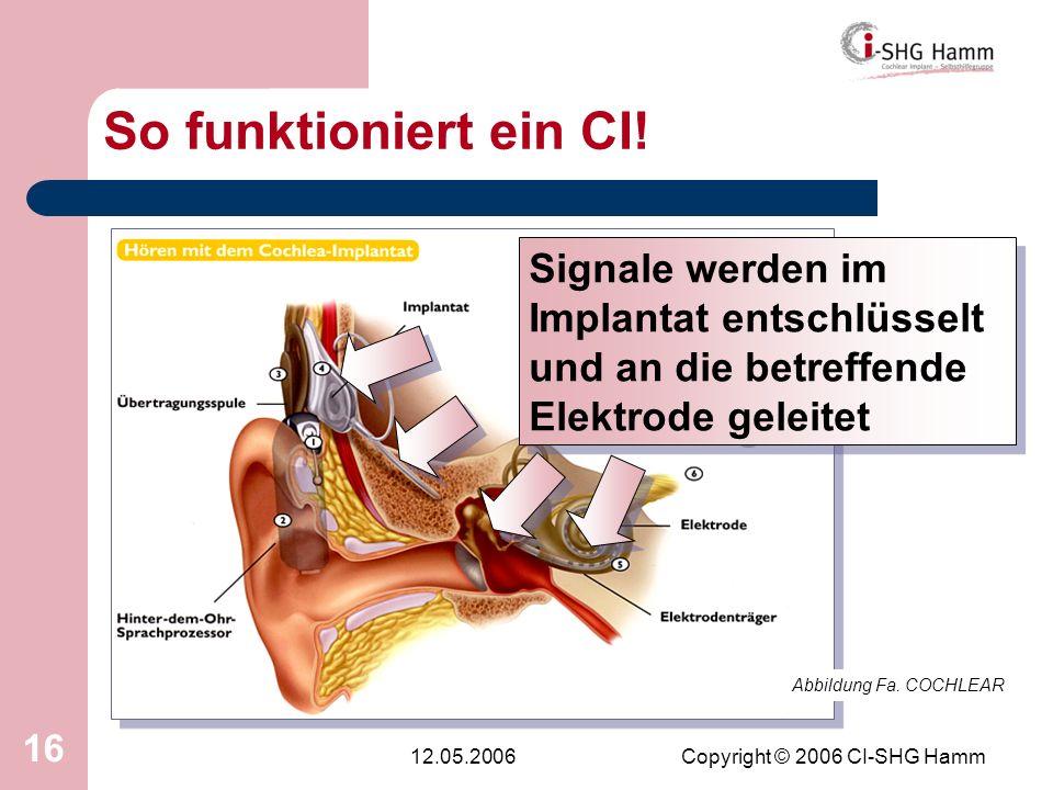 12.05.2006Copyright © 2006 CI-SHG Hamm 16 So funktioniert ein CI! Abbildung Fa. COCHLEAR Signale werden im Implantat entschlüsselt und an die betreffe