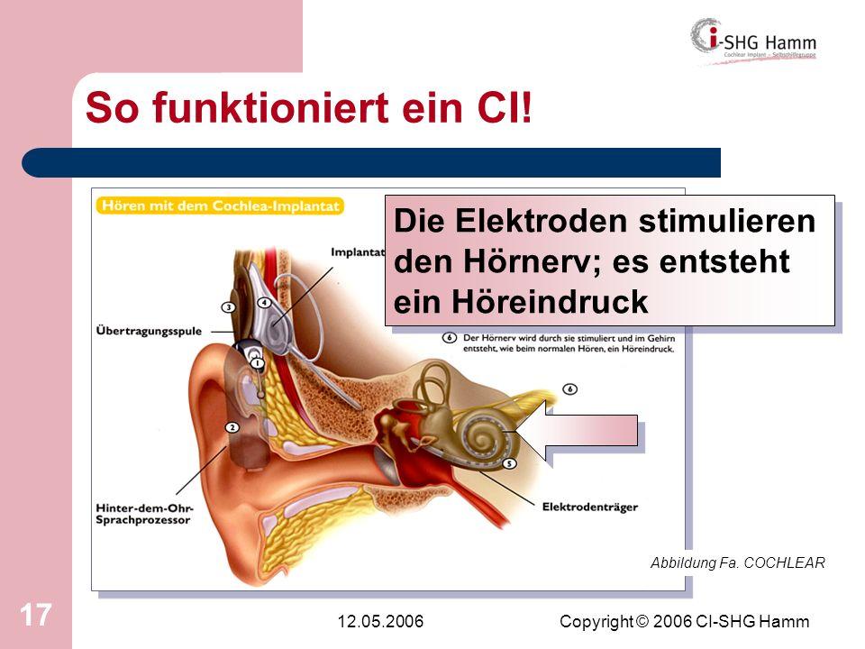 12.05.2006Copyright © 2006 CI-SHG Hamm 17 So funktioniert ein CI! Abbildung Fa. COCHLEAR Die Elektroden stimulieren den Hörnerv; es entsteht ein Hörei
