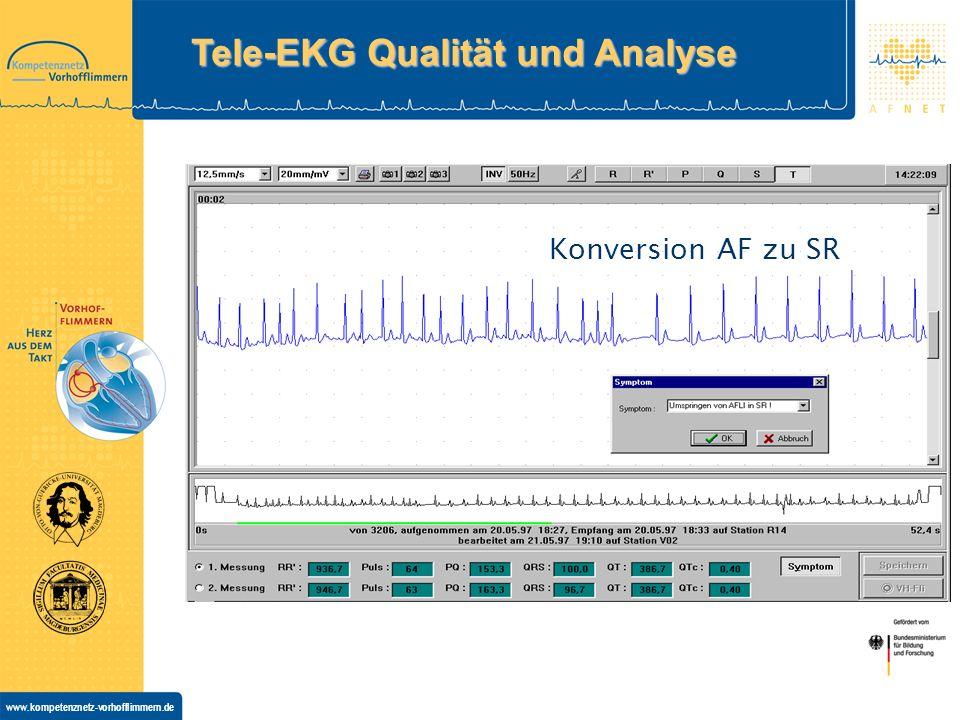www.kompetenznetz-vorhofflimmern.de Konversion AF zu SR Tele-EKG Qualität und Analyse