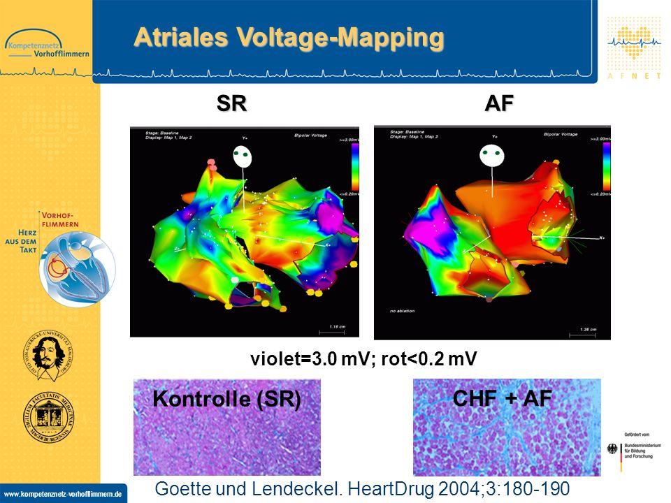 www.kompetenznetz-vorhofflimmern.de Atriales Voltage-Mapping SR AF violet=3.0 mV; rot<0.2 mV Goette und Lendeckel.