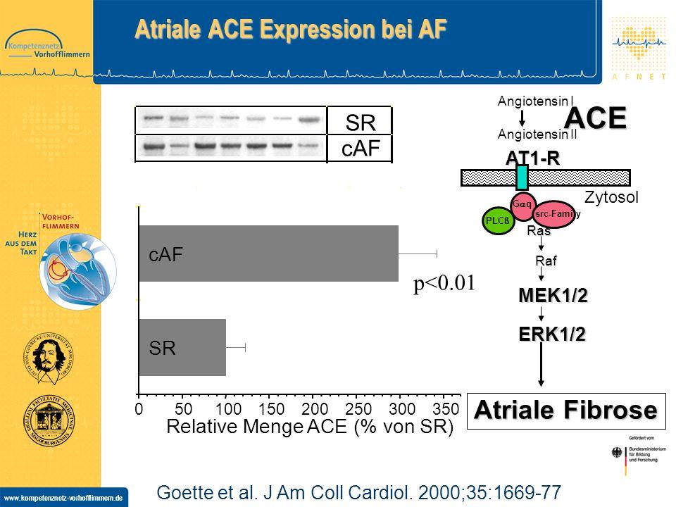 www.kompetenznetz-vorhofflimmern.de Inhibition von Angiotensin II wirkt antifibrillatorisch ACE Ang II MAPK Bradykinin ACE Inhibitor Getriggerte Aktivität Gesteigerte Automatie AT1-Rezeptor Antagonist Kollagen- Akkumulation Hypertrophie Kohya et al.