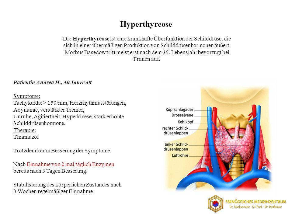 Hyperthyreose Die Hyperthyreose ist eine krankhafte Überfunktion der Schilddrüse, die sich in einer übermäßigen Produktion von Schilddrüsenhormonen äußert.