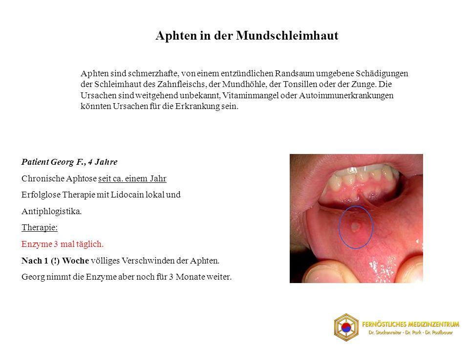 Aphten in der Mundschleimhaut Aphten sind schmerzhafte, von einem entzündlichen Randsaum umgebene Schädigungen der Schleimhaut des Zahnfleischs, der Mundhöhle, der Tonsillen oder der Zunge.