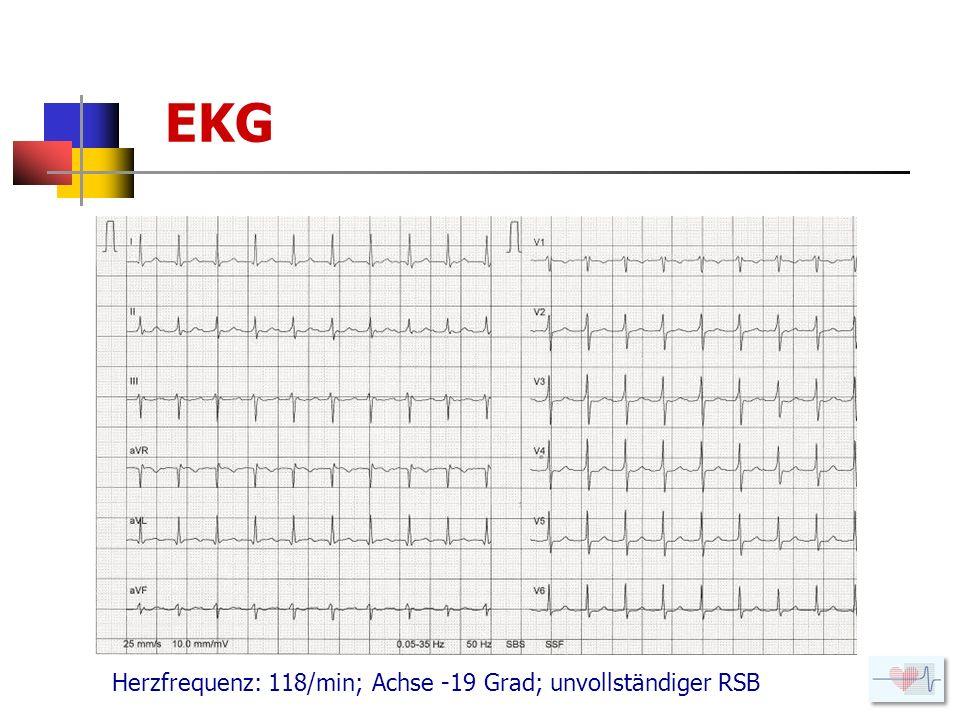 Anamnese CHK mit Status nach Infarkt 2004 Stenting RCA Status nach VHFLi – SR unter Cordarone Niereninsuffizienz Grad III; Cl.