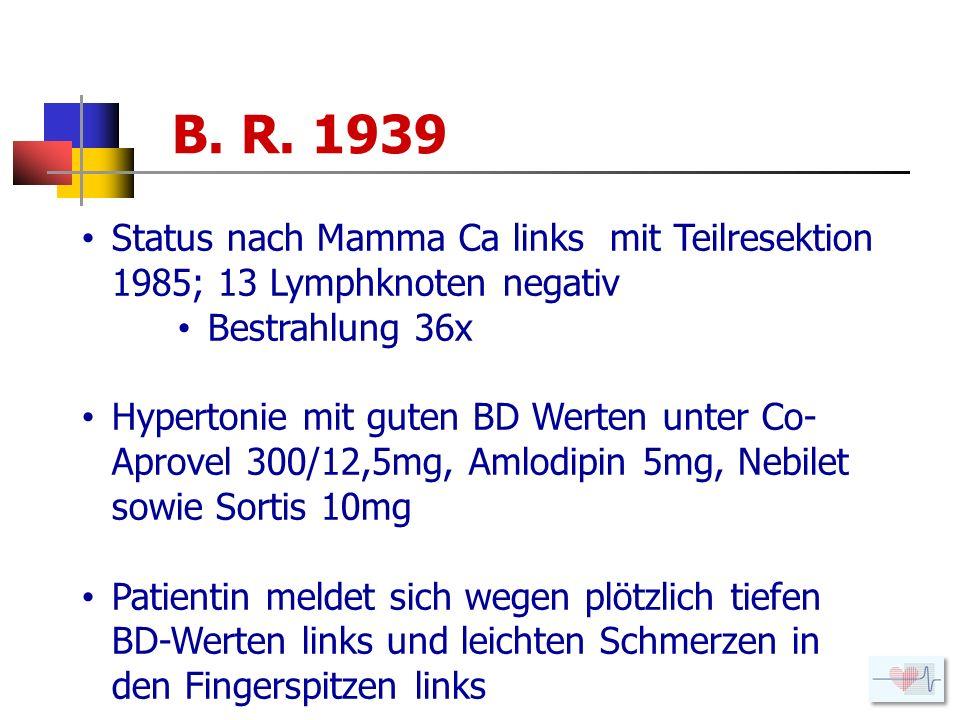B. R. 1939 Status nach Mamma Ca links mit Teilresektion 1985; 13 Lymphknoten negativ Bestrahlung 36x Hypertonie mit guten BD Werten unter Co- Aprovel