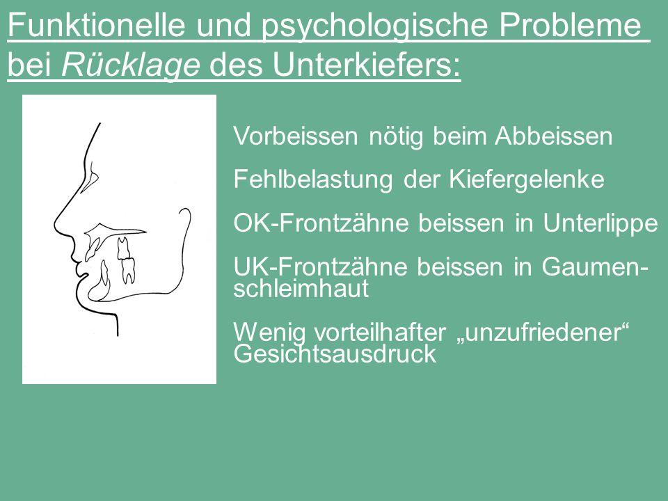 Funktionelle und psychologische Probleme bei Rücklage des Unterkiefers: Vorbeissen nötig beim Abbeissen Fehlbelastung der Kiefergelenke OK-Frontzähne