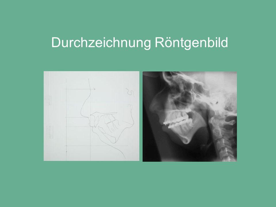 Durchzeichnung Röntgenbild