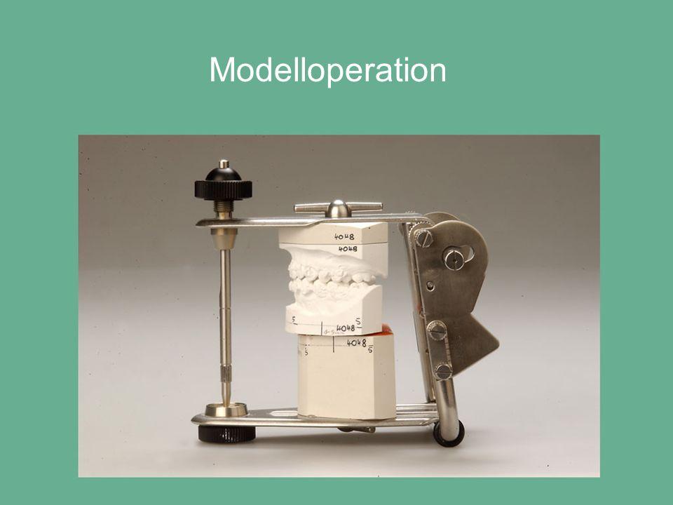 Modelloperation