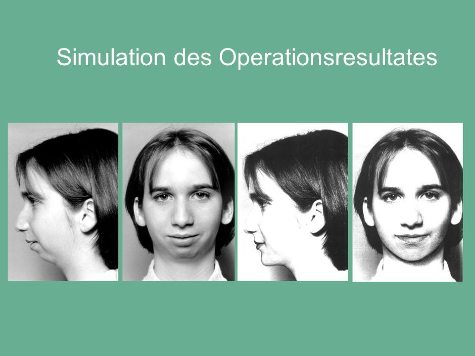 Simulation des Operationsresultates