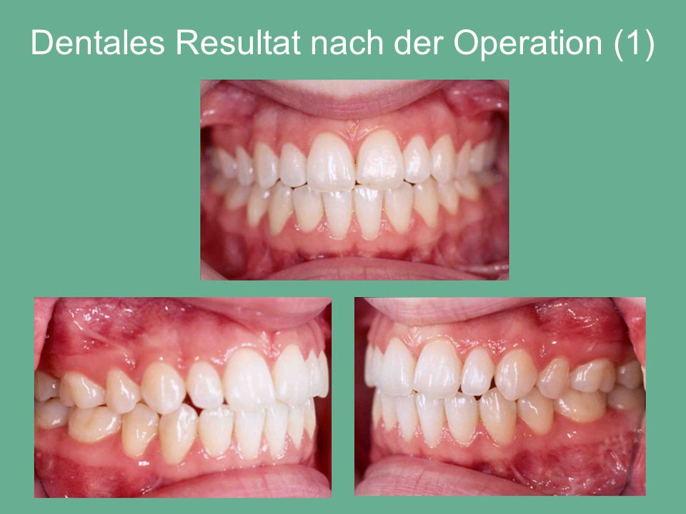 Dentales Resultat nach der Operation (1)