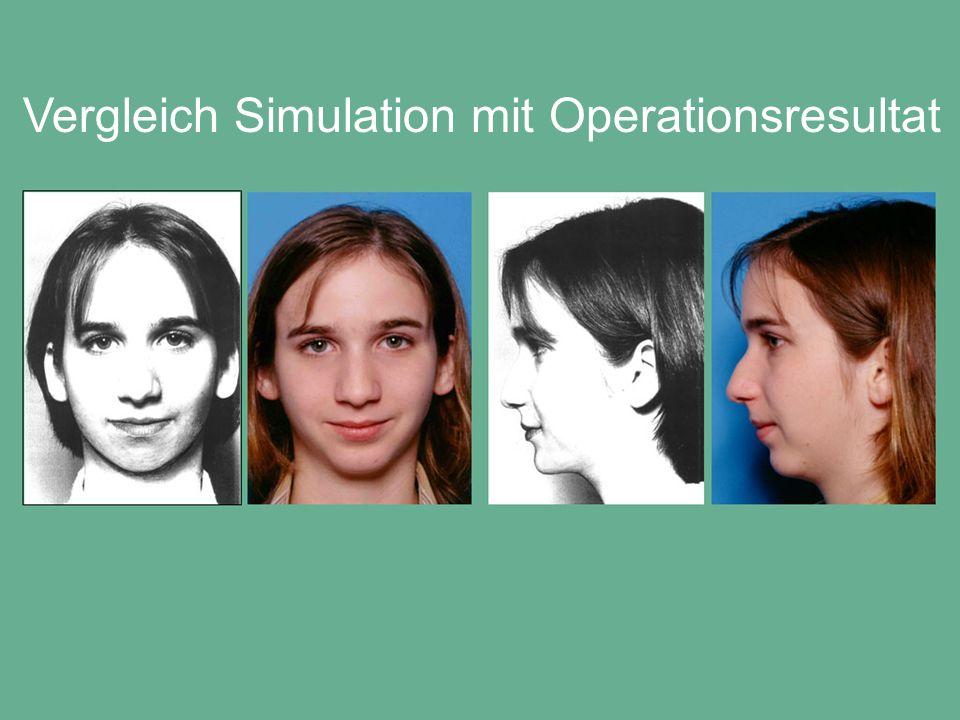 Vergleich Simulation mit Operationsresultat