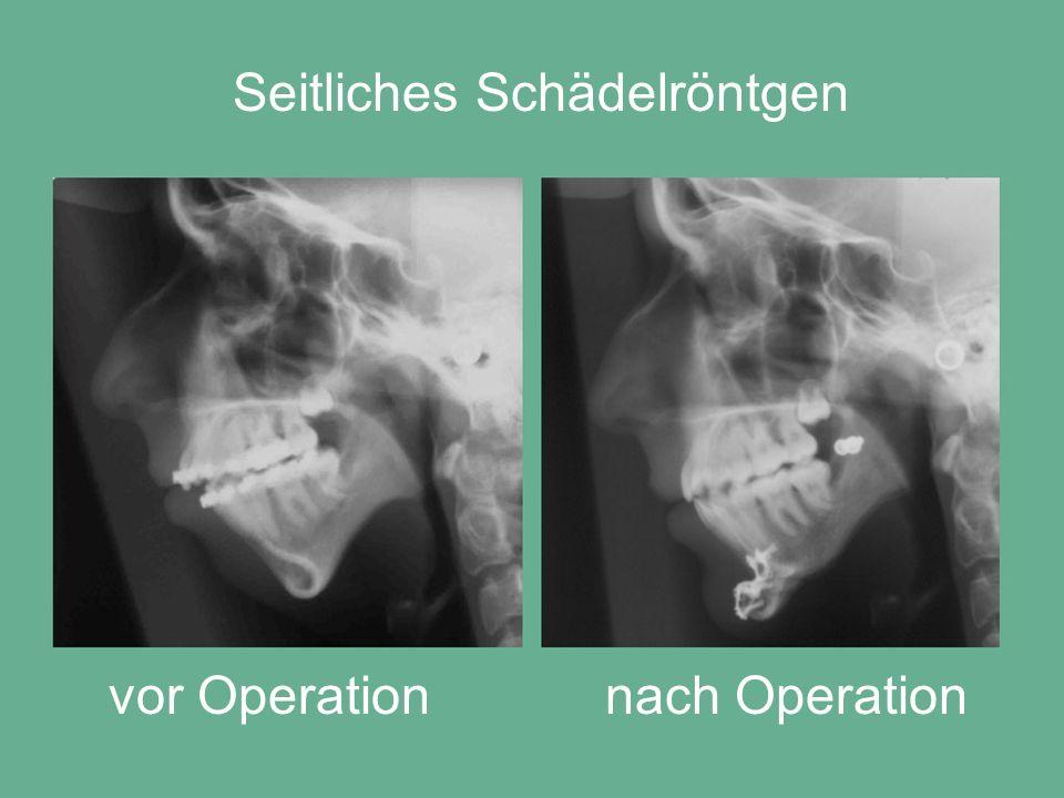 Seitliches Schädelröntgen vor Operationnach Operation