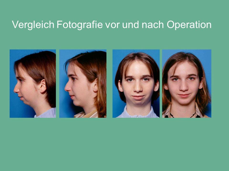 Vergleich Fotografie vor und nach Operation