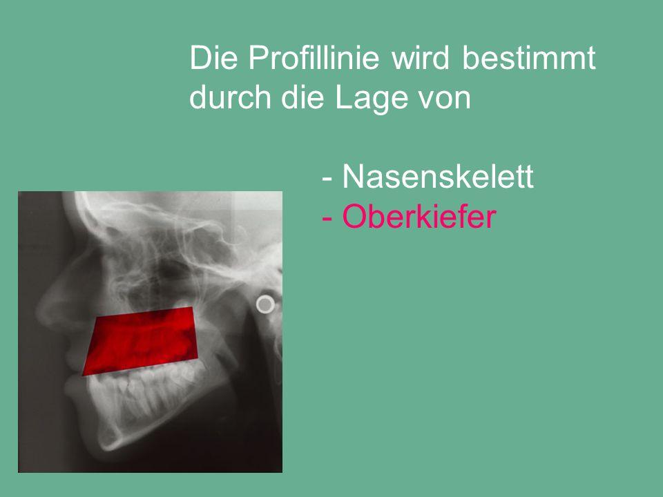 Die Profillinie wird bestimmt durch die Lage von - Nasenskelett - Oberkiefer