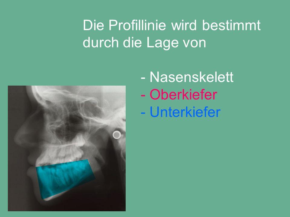 Die Profillinie wird bestimmt durch die Lage von - Nasenskelett - Oberkiefer - Unterkiefer - Frontzahnstellung