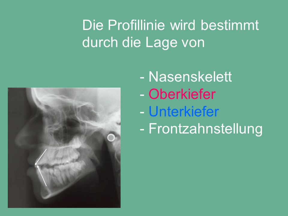 Gebisszustand nach kieferorthopädischer Vorbereitung für Operation