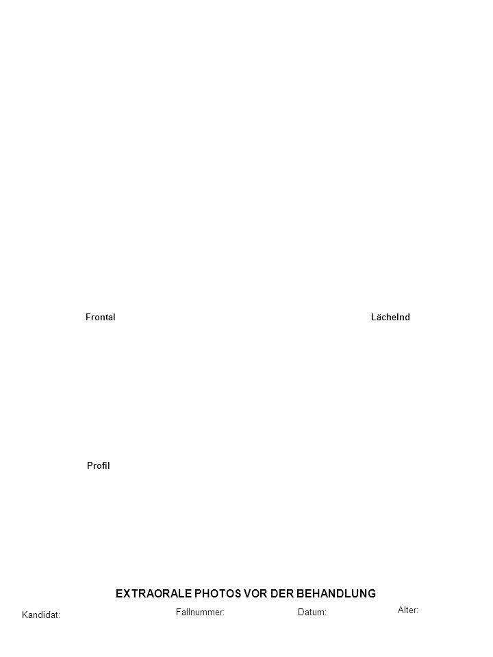 Frontal Lächelnd Profil Kandidat: Datum: Alter: Fallnummer: EXTRAORALE PHOTOS NACH DER RETENTION