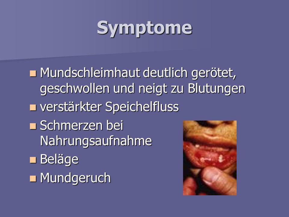 Ursachen –m–m–m–mangelnde Mundhygiene –s–s–s–schlechter Allgemeinzustand (bei Infektionen, Erkrankungen des Immunsystems) –ö–ö–ö–örtliche Reizung (sch