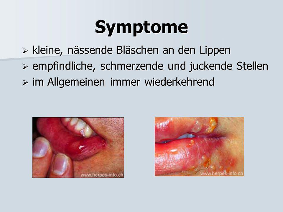 4. Herpes simplex labialis Symptome Symptome Ansteckung Ansteckung Krankheitsbild Krankheitsbild Vorbeugung Vorbeugung Behandlung Behandlung