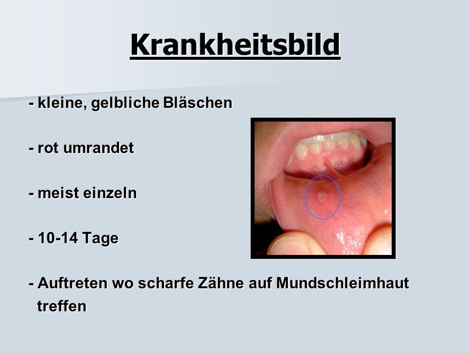 Allgemeines schmerzhaft entzündete Stelle der Schleimhaut des Zahnfleischs, der Mundhöhle oder der Zunge ca. bei 10% der Bevölkerung