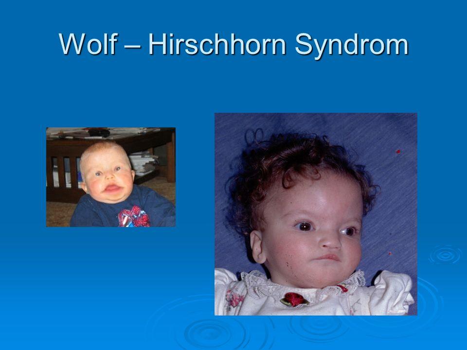 Wolf – Hirschhorn Syndrom