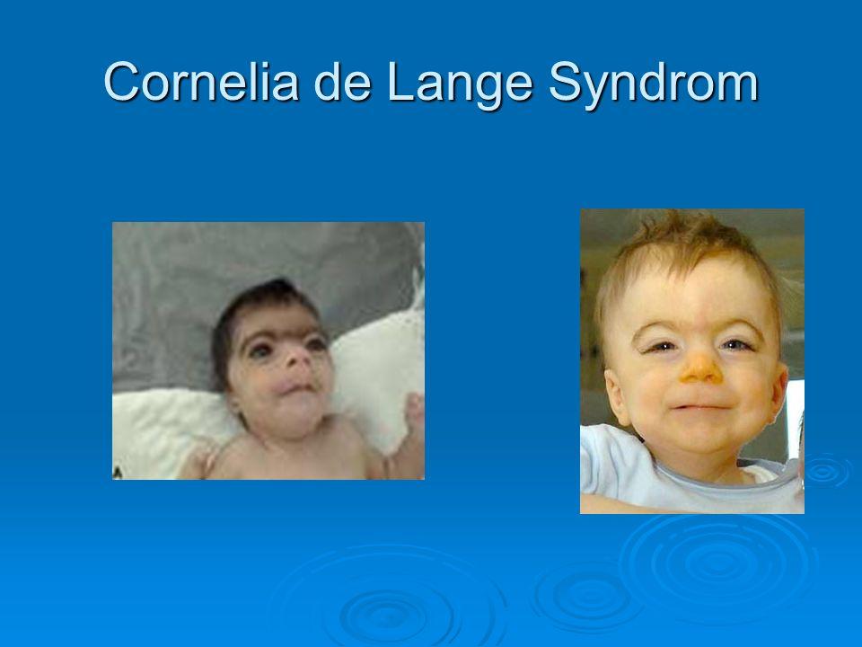 Cornelia de Lange Syndrom