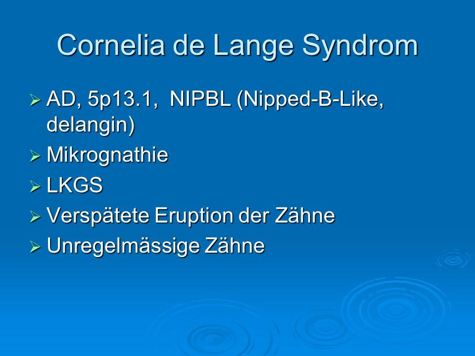 AD, 5p13.1, NIPBL (Nipped-B-Like, delangin) AD, 5p13.1, NIPBL (Nipped-B-Like, delangin) Mikrognathie Mikrognathie LKGS LKGS Verspätete Eruption der Zä