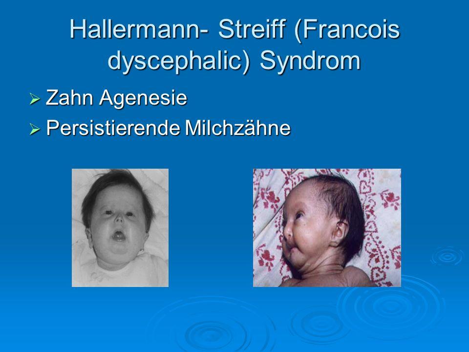Hallermann- Streiff (Francois dyscephalic) Syndrom Zahn Agenesie Zahn Agenesie Persistierende Milchzähne Persistierende Milchzähne