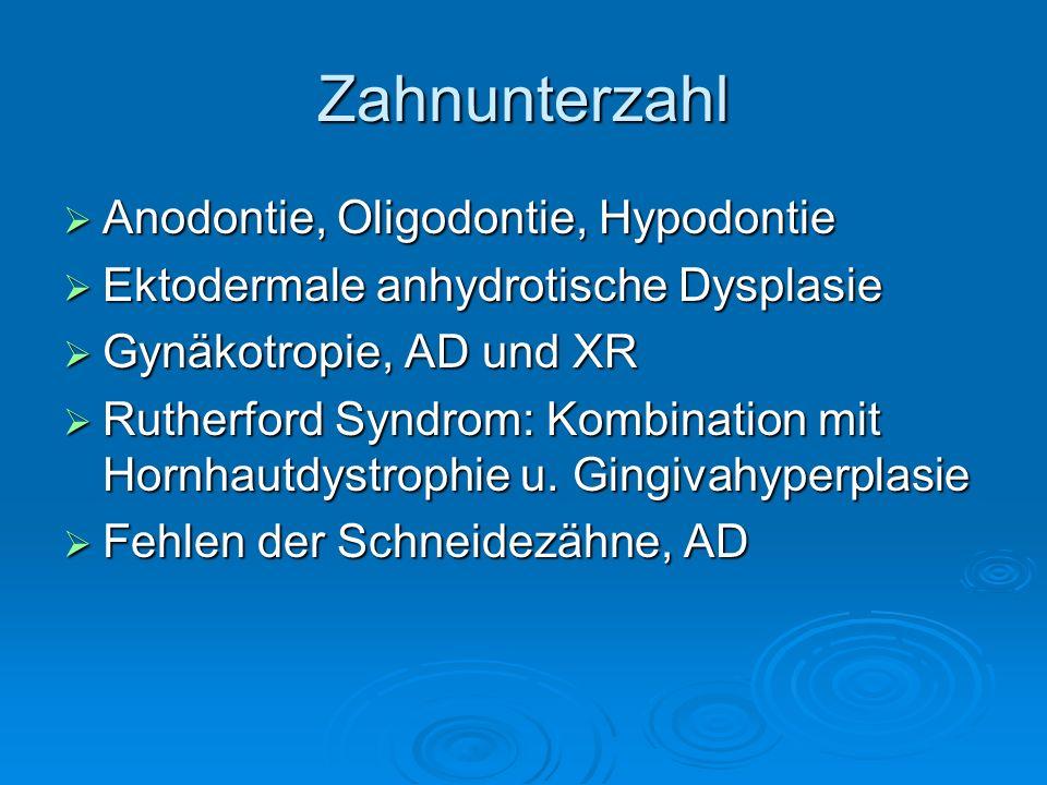 Zahnunterzahl Anodontie, Oligodontie, Hypodontie Anodontie, Oligodontie, Hypodontie Ektodermale anhydrotische Dysplasie Ektodermale anhydrotische Dysp
