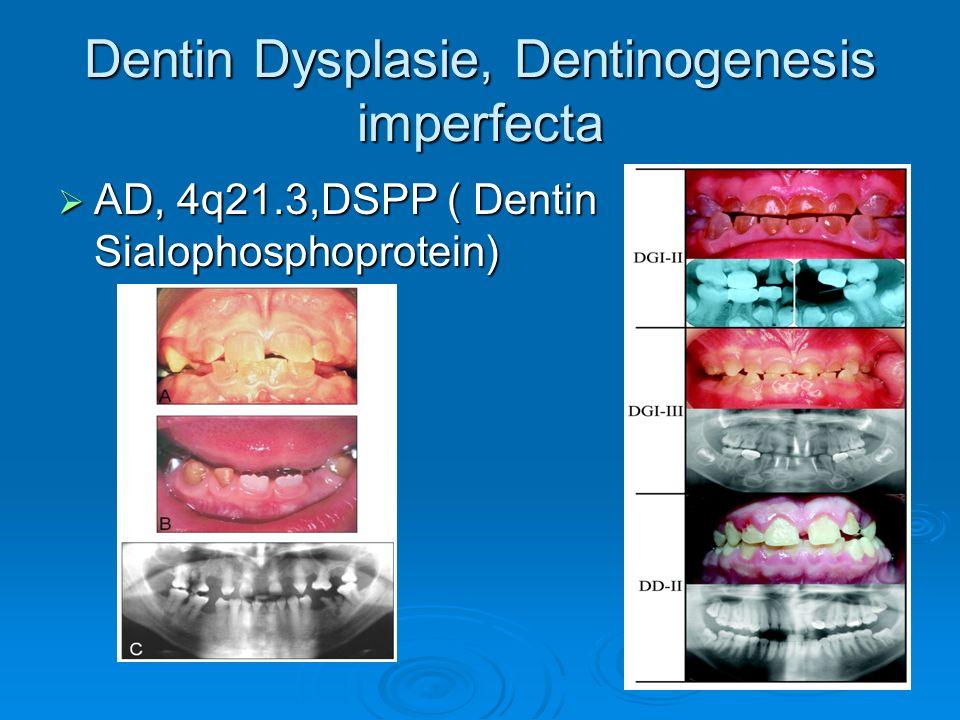 Dentin Dysplasie, Dentinogenesis imperfecta AD, 4q21.3,DSPP ( Dentin Sialophosphoprotein) AD, 4q21.3,DSPP ( Dentin Sialophosphoprotein)