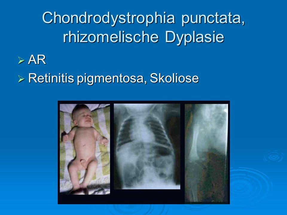 Chondrodystrophia punctata, rhizomelische Dyplasie AR AR Retinitis pigmentosa, Skoliose Retinitis pigmentosa, Skoliose