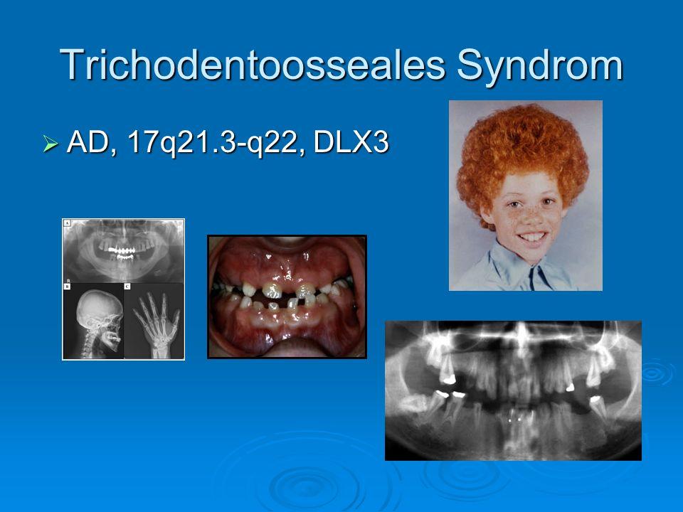 Trichodentoosseales Syndrom AD, 17q21.3-q22, DLX3 AD, 17q21.3-q22, DLX3