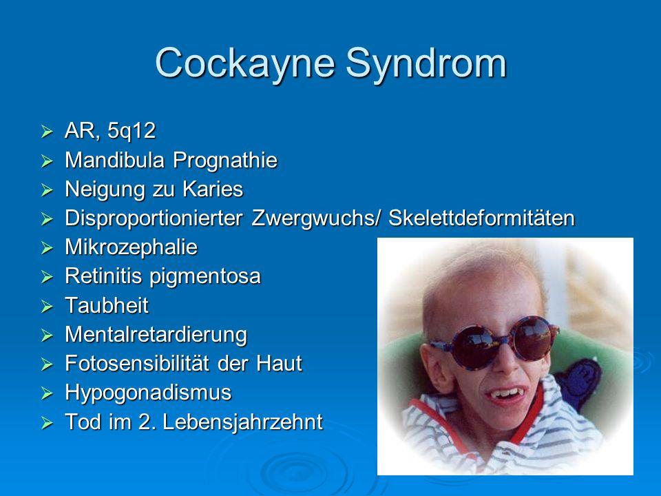 Cockayne Syndrom AR, 5q12 AR, 5q12 Mandibula Prognathie Mandibula Prognathie Neigung zu Karies Neigung zu Karies Disproportionierter Zwergwuchs/ Skele