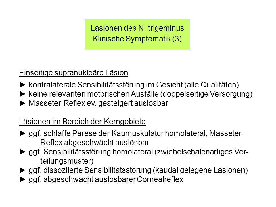 Läsionen des N. trigeminus Klinische Symptomatik (3) Einseitige supranukleäre Läsion kontralaterale Sensibilitätsstörung im Gesicht (alle Qualitäten)