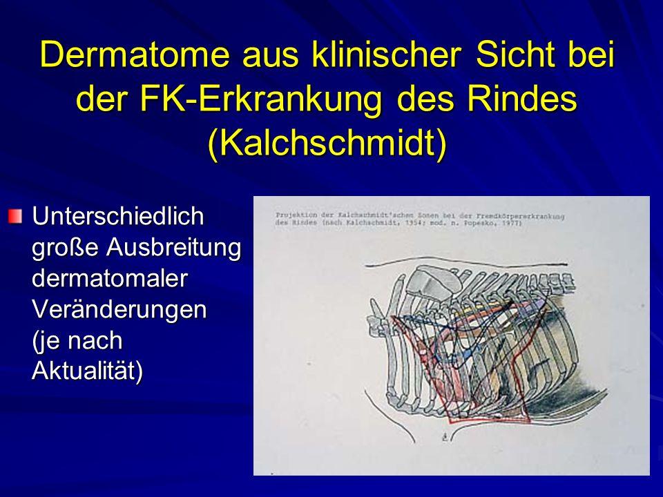 Dermatome aus klinischer Sicht bei der FK-Erkrankung des Rindes (Kalchschmidt) Unterschiedlich große Ausbreitung dermatomaler Veränderungen (je nach Aktualität)