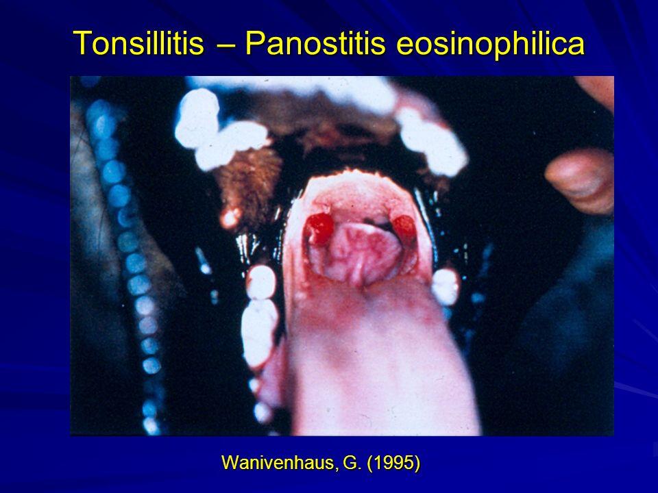Wanivenhaus, G. (1995) Tonsillitis – Panostitis eosinophilica