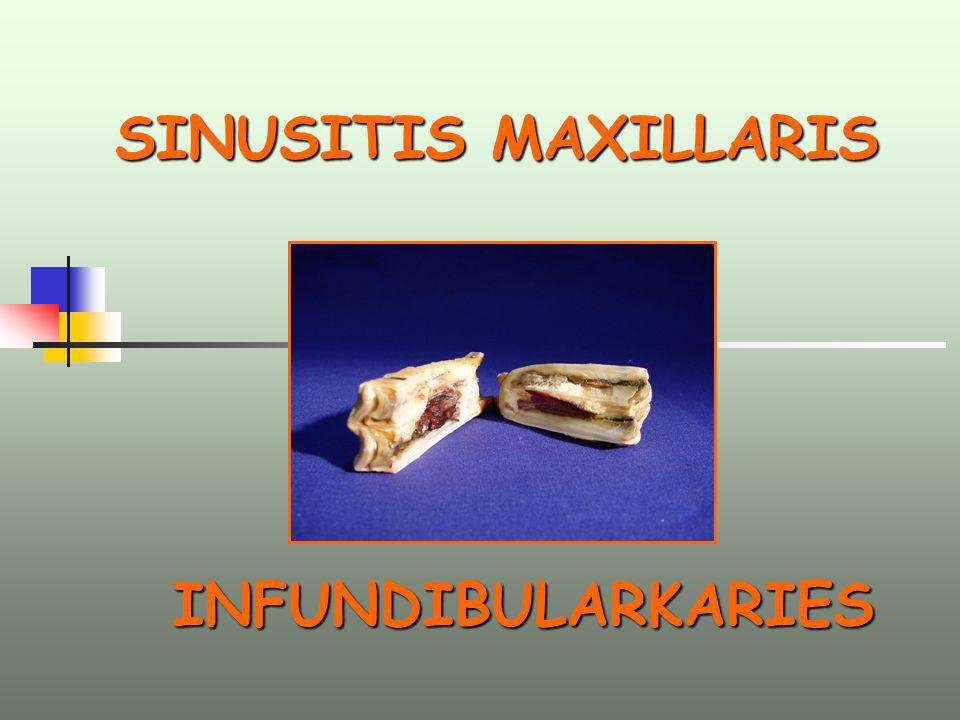 SINUSITIS MAXILLARIS SINUSITIS MAXILLARIS INFUNDIBULARKARIES