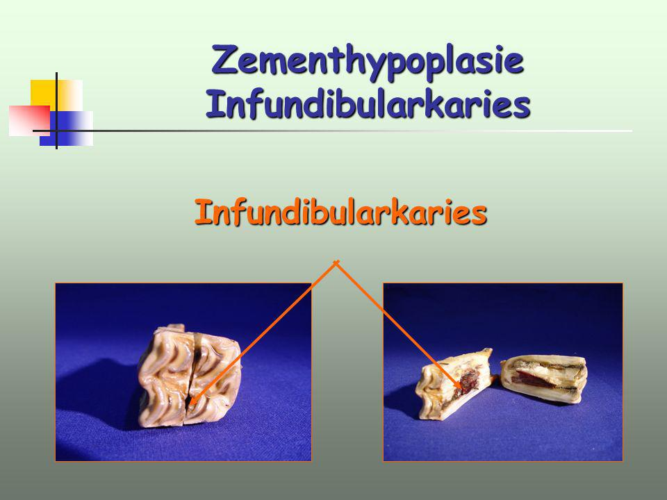 Zementhypoplasie Infundibularkaries Infundibularkaries