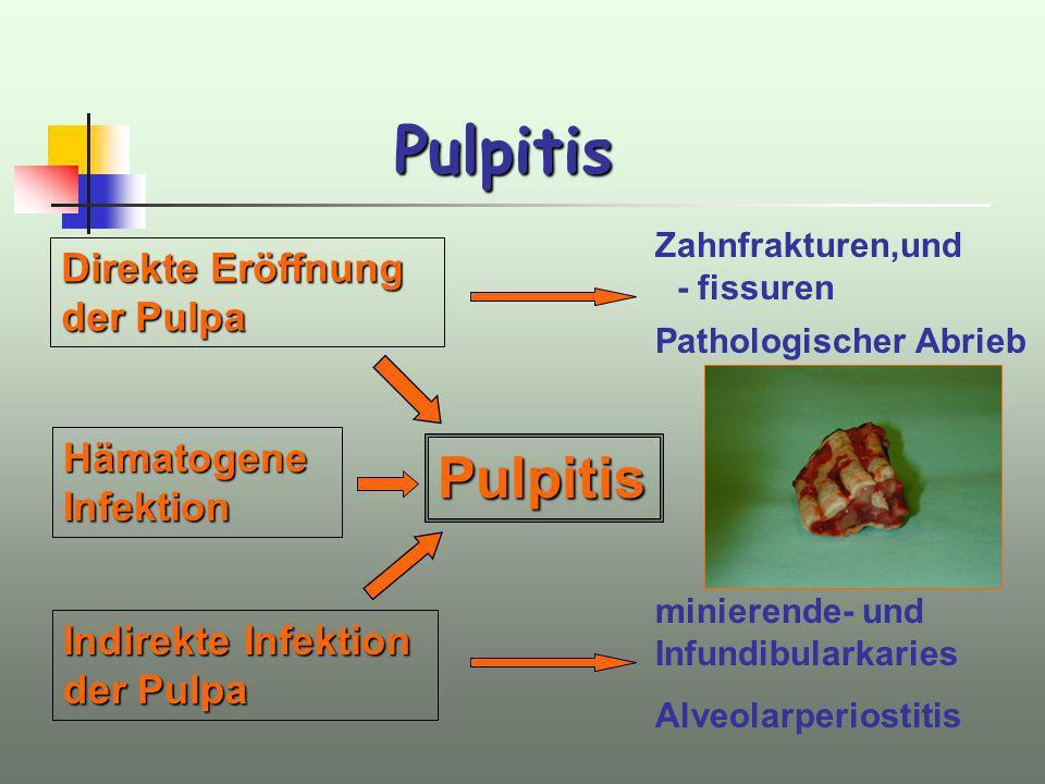 Pulpitis Pulpitis Zahnfrakturen,und - fissuren Direkte Eröffnung der Pulpa Indirekte Infektion der Pulpa Pathologischer Abrieb minierende- und Infundi