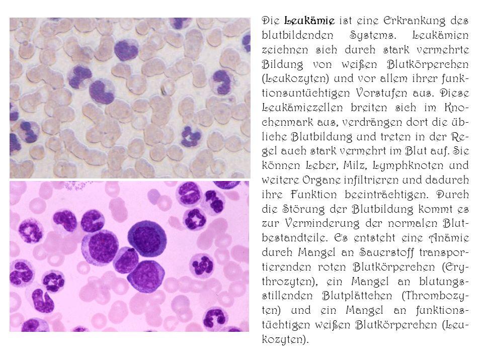 Die Leukämie ist eine Erkrankung des blutbildenden Systems. Leukämien zeichnen sich durch stark vermehrte Bildung von weißen Blutkörperchen (Leukozyte
