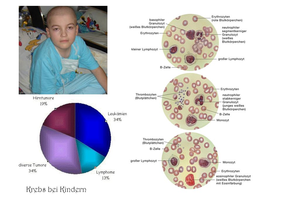 Krebs bei Kindern