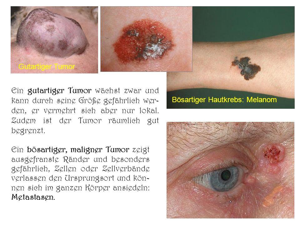 Ein gutartiger Tumor wächst zwar und kann durch seine Größe gefährlich wer- den, er vermehrt sich aber nur lokal. Zudem ist der Tumor räumlich gut beg