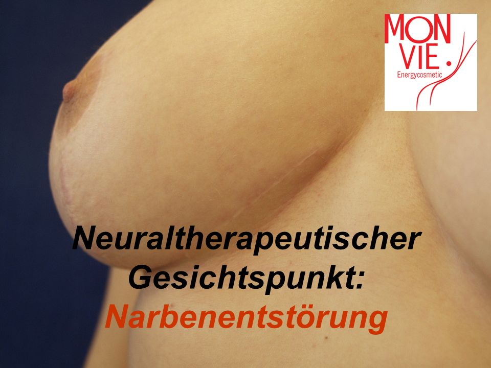 Neuraltherapeutischer Gesichtspunkt: Narbenentstörung